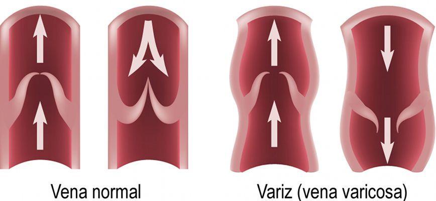 El cuidado de la piel de los pies a varikoze